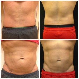 cool-Sculpting-non-invasive-lipo-on-love-handles-for-men-before-and-after