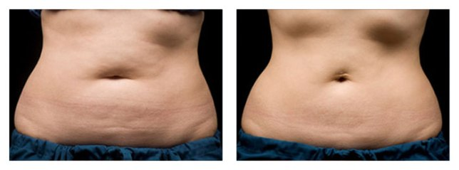 coolsculpting-by-zeltiq
