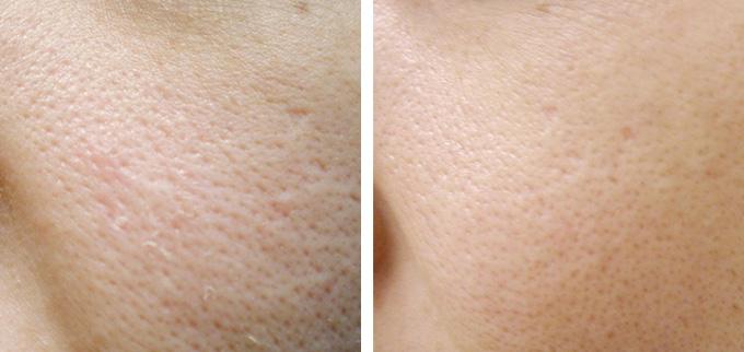 Can I Shrink My Pores advise