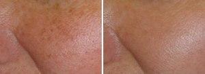 Large pores1